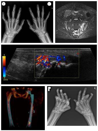 Arthritis Images_ESSR